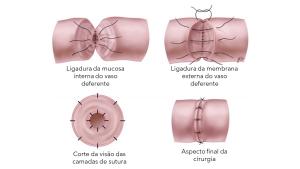 REVERSAO DE VASECTOMIA EM CURITIBA TRATAMENTO