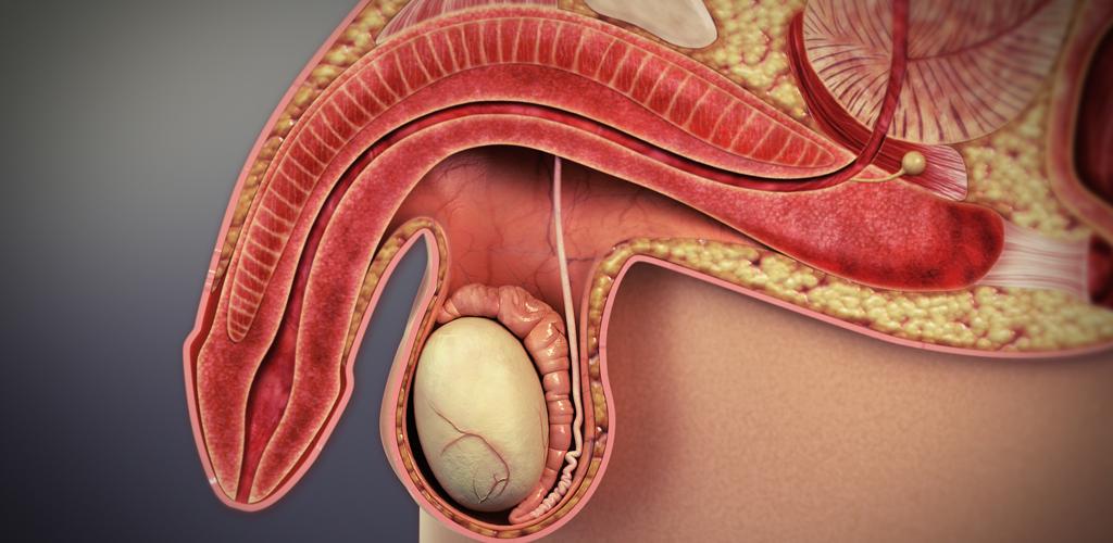 Implante Peniano: uma opção para o tratamento da Disfunção Erétil.