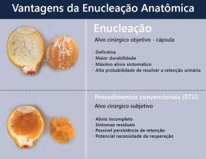 DIFERENCA-ENTRE-RessecCAO-Trans-uretral--E-A-ENUCLEACAO