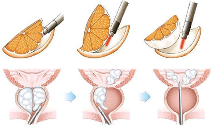"""Nas chamadas """"Enucleações"""", todo o tecido hiperplásico é retirado, com auxílio do Laser (HoLEP) ou do Plasma (BipoLEP)"""