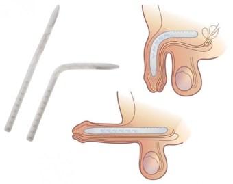 Implante peniano com haste flexível